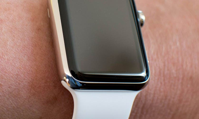 Apple Watch am Arm